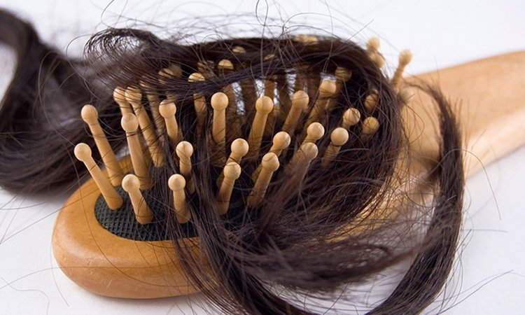Wypadanie włosów - jak sobie pomóc?