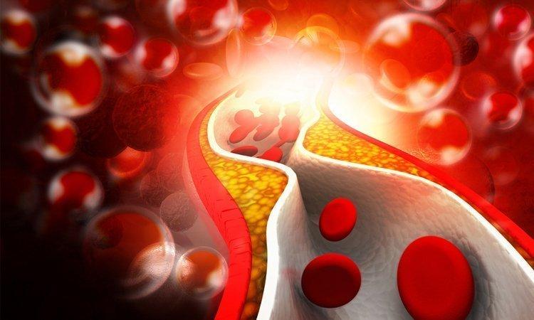 Jak zbić cholesterol - Apteka internetowa Melissa