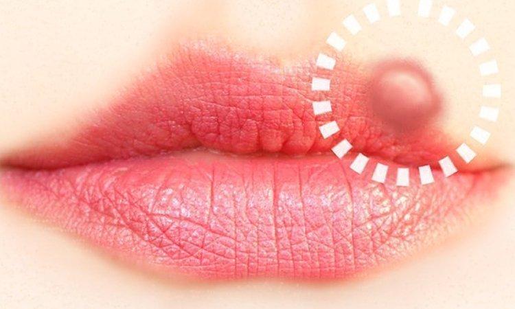 Opryszczka na ustach - jak z nią walczyć?