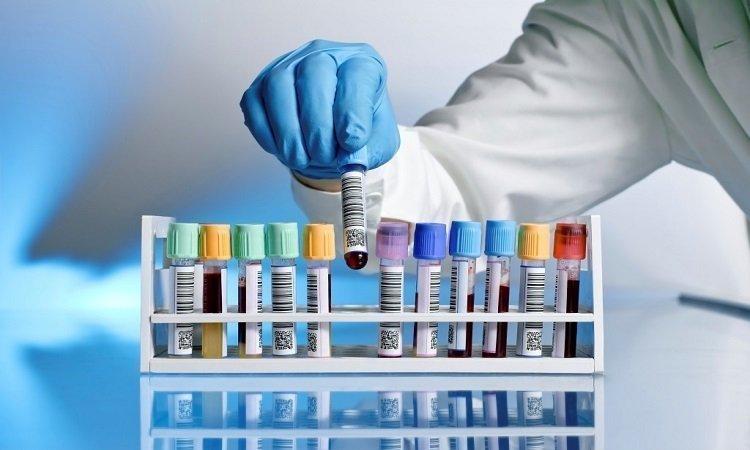 Testy diagnostyczne do użytku domowego - rodzaje i zastosowanie