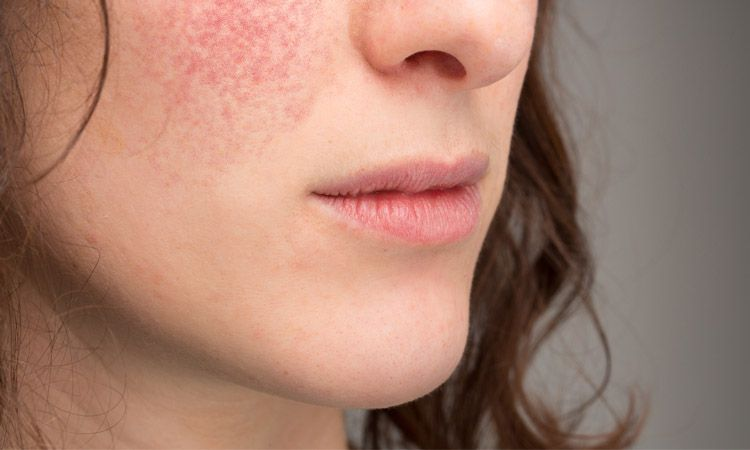 Homeoplasmine - maść homeopatyczna na problemy ze skórą