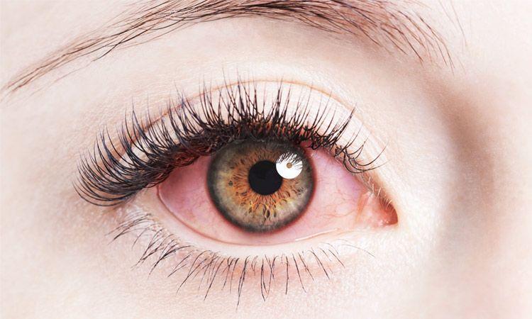 Alergiczne choroby oczu – jak je rozpoznać?