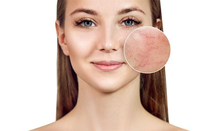 Cera naczynkowa latem - zmiany naczynkowe na twarzy