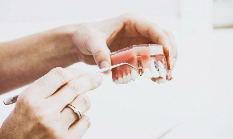 Jak dbać o protezę zębową? - Apteka internetowa Melissa