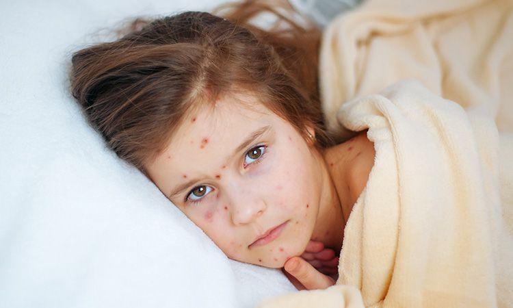 Czerwona wysypka - jeden z objawów odry