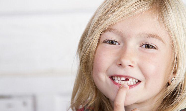 Wypadanie zębów mlecznych - czy pomóc dziecku wyrwać zęba?