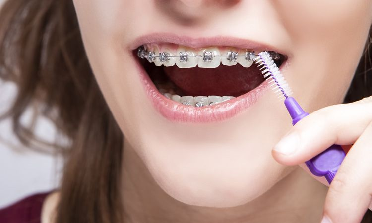 Sprawdź, jak wygląda leczenie ortodontyczne I jakie są jego etapy