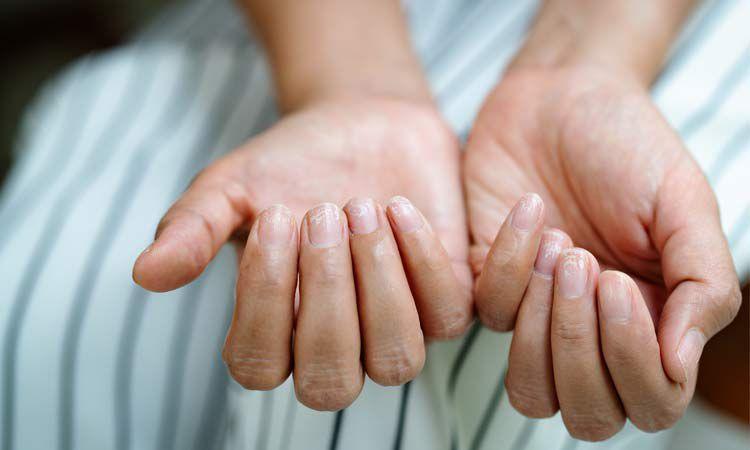 Osłabione paznokcie po hybrydzie z miękką i uszkodzoną płytką
