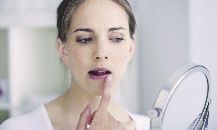Okoliczności, w których warto przygotować się na pojawienie się opryszczki wargowej - Apteka internetowa Melissa