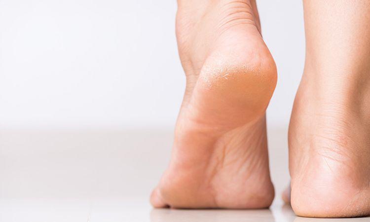 Zespół stopy cukrzycowej – jakie są jego objawy i jak wygląda leczenie?