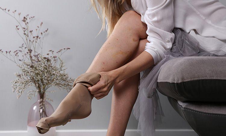 Zapobieganie żylakom w ciąży - jak powinno wyglądać?
